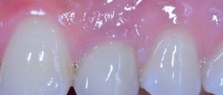 #23: couronne sur implant