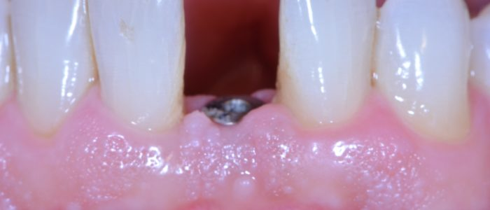 #31: Implant