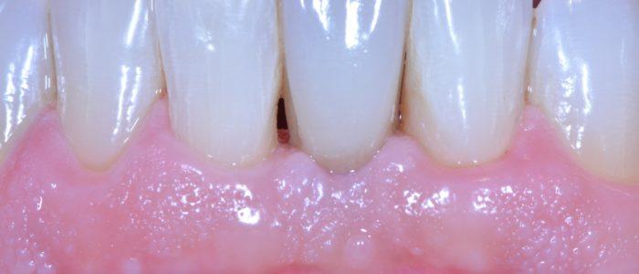 #31: couronne sur pilier implantaire