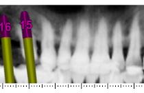 #14 & #16: CBCT (cone beam ou scanner) : planification avec Simplant®