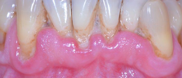 Avant traitement initial - Parodontite modérée avec dysharmonie dentaire primitive chez patient non fumeur