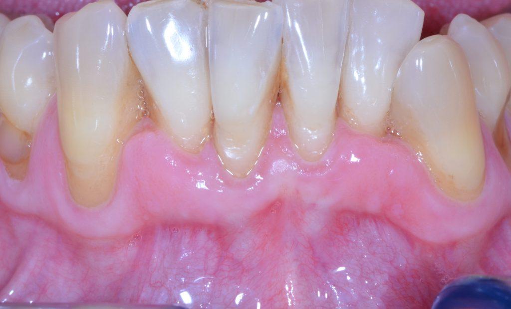 parodontologie traitement
