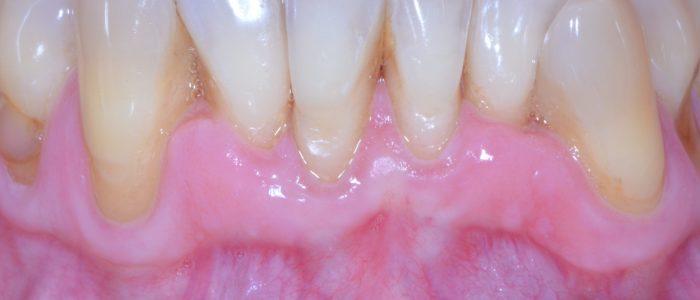 Après traitement initial - Parodontite modérée avec dysharmonie dentaire primitive chez patient non fumeur