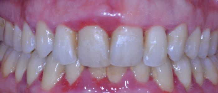 Parodontite modérée avec inflammation gingivale sévère