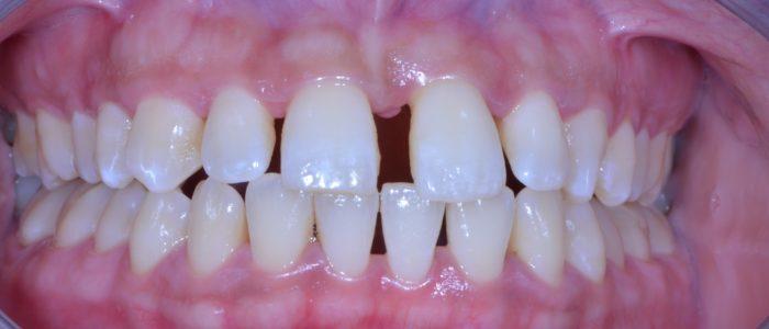 Parodontite sévère
