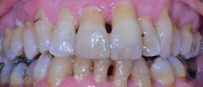 Parodontite sévère avec déplacement des dents et déchaussement des dents