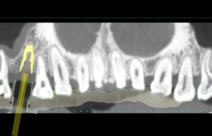 #15: vue panoramique de la planification implantaire avec Simplant (r)